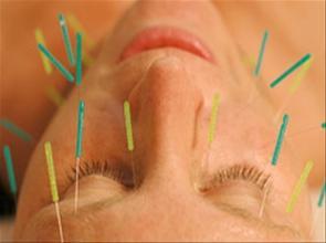o-que-e-a-acupuntura-5